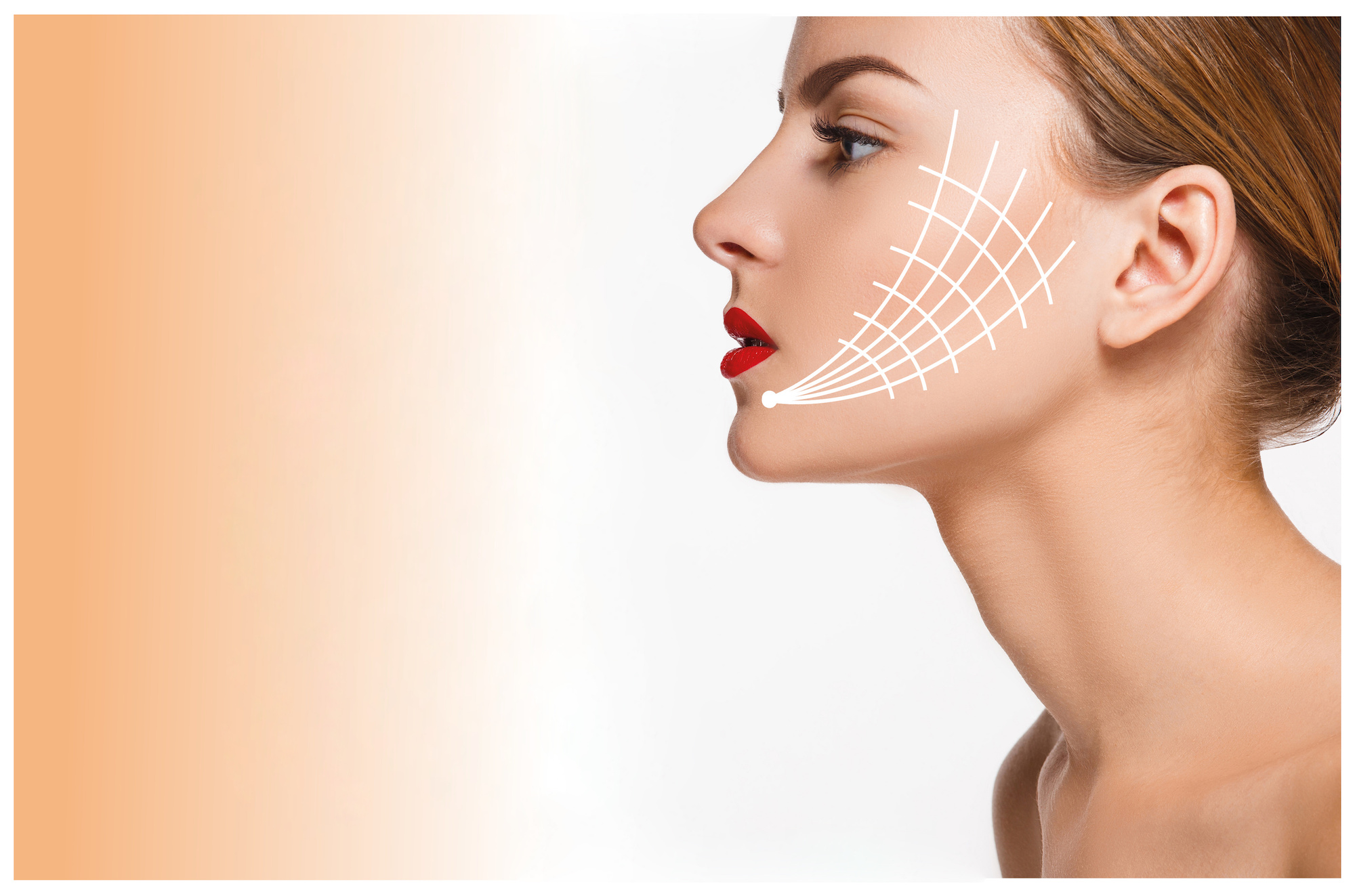 pdf smooth thread, nonsurgical facelift, facelift, anti-aging, look younger without surgery